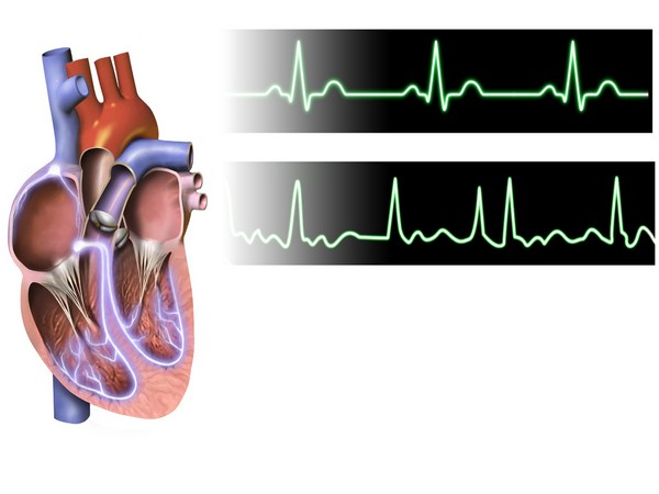 Home-based education reduces hospitalisations in patients with atrial fibrillation